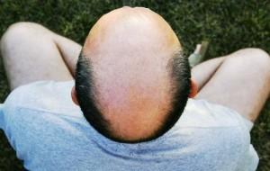 Hy vọng mới về thuốc chữa hói đầu