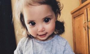 Căn bệnh ẩn sau đôi mắt to tròn của bé hai tuổi